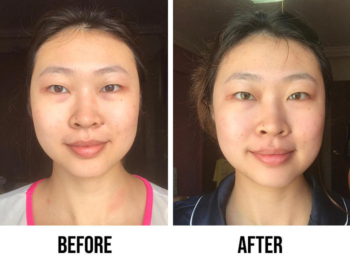Innisfree Black Tea Youth Enhancing Ampoule Review Joey Before After