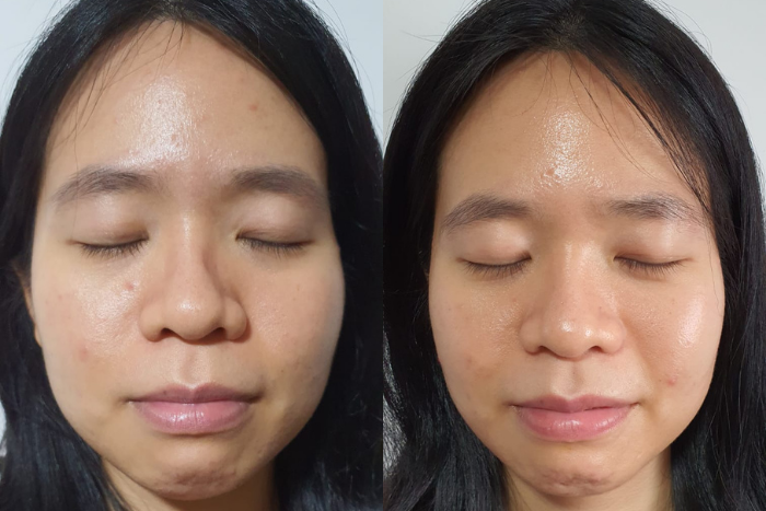 Snowperk Reader Review Wendy Before After