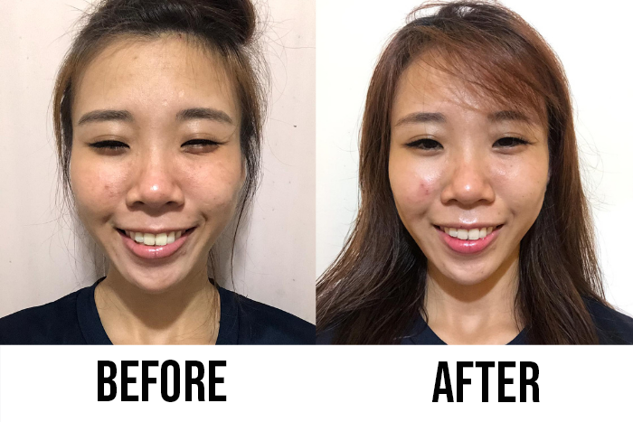 mentholatum acnes readers review cherry before after