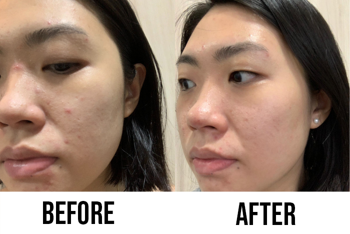 mentholatum acnes readers review wan zhen before after