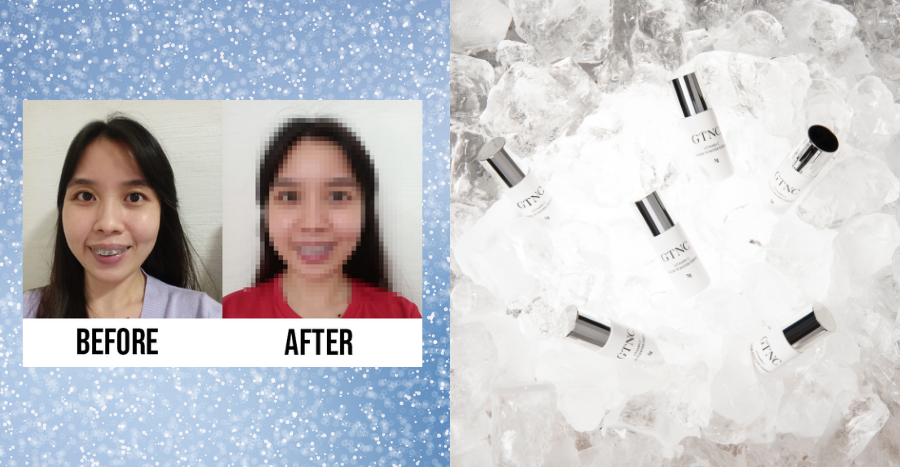 GTNC skincare review: 10 readers tried a Korean brightening essence and skin exfoliator to see if they can banish dullness and pigmentation