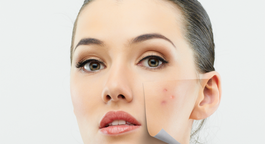 The position of your acne may be telling you something about your health. We read the signs for you