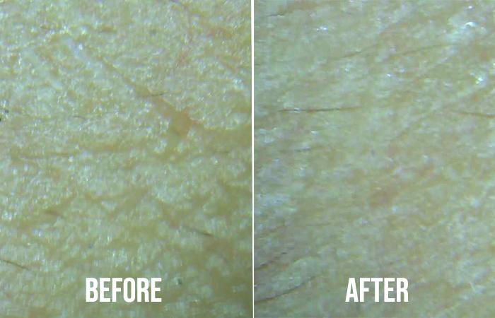 Orbis U Lotion Review Skin Texture Closeup2