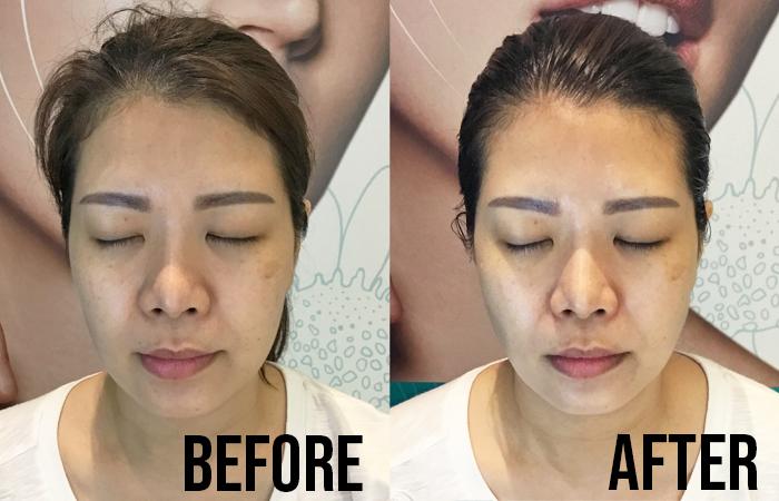 Celmonze Signature Plus Facial Review Jenny