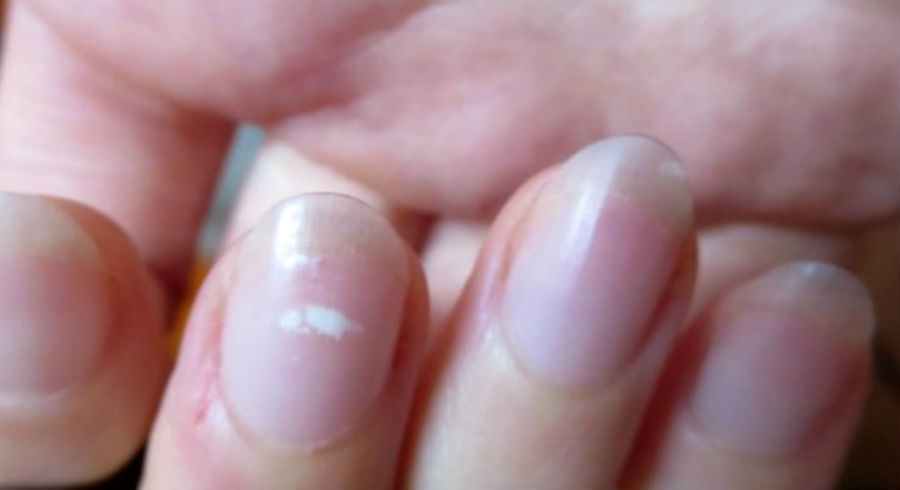 10 nail problems you should not ignore and what they tell you about your health