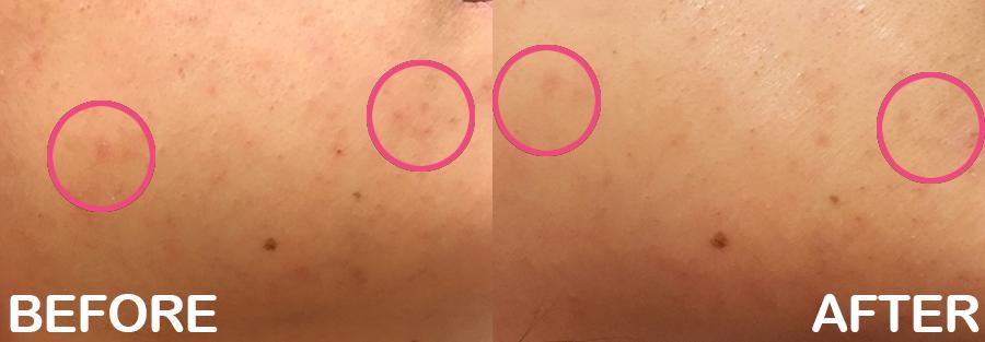 acne scar removal aha 3