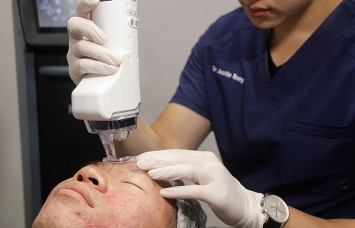 Acne Scar Removal Sozo Aesthetic Clinic 2