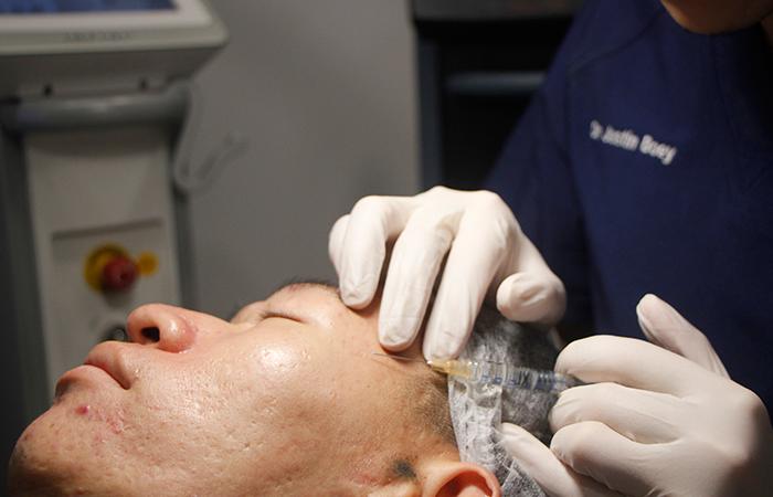 Acne Scar Removal Sozo Aesthetic Clinic 3