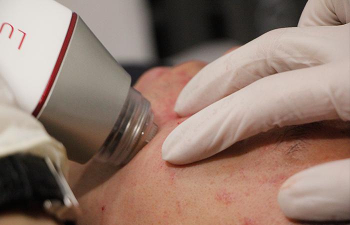 Acne Scar Removal Sozo Aesthetic Clinic 4