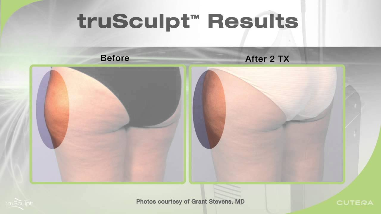 targeted area slimming trusculpt