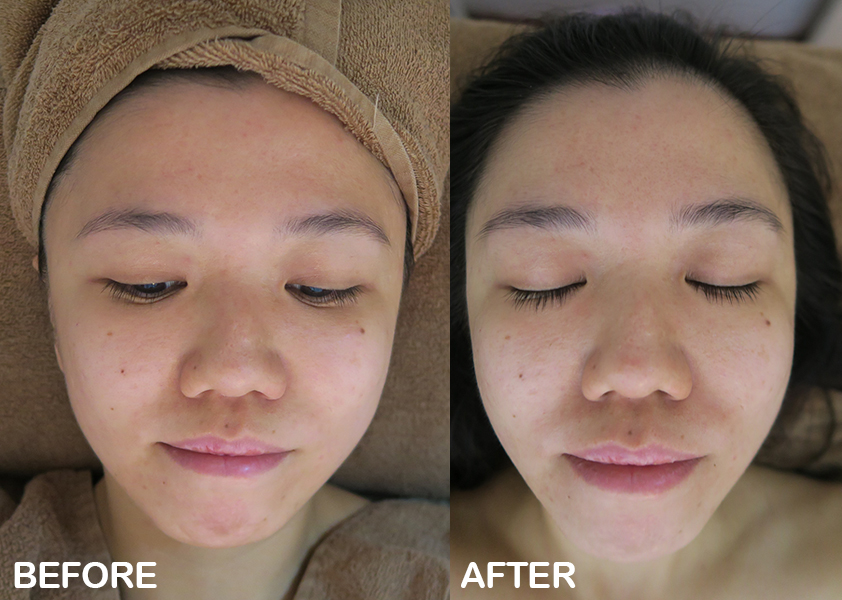 tired skin facial annabelle skin before after