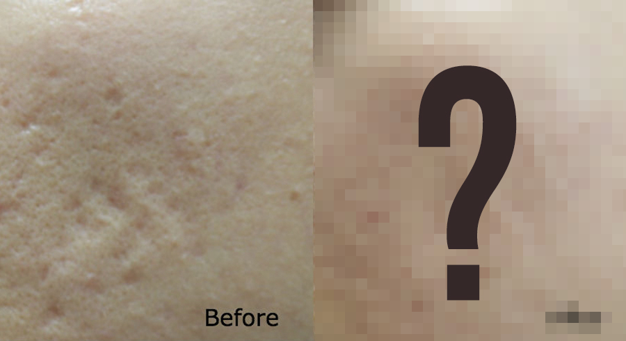 Dore Clinic and Dore Aesthetics review: Acne scar removal
