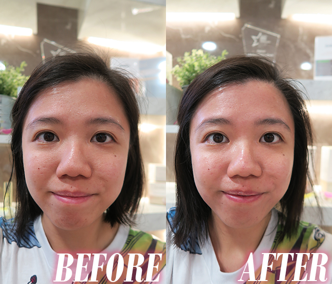brightening facial singapore sg face before after