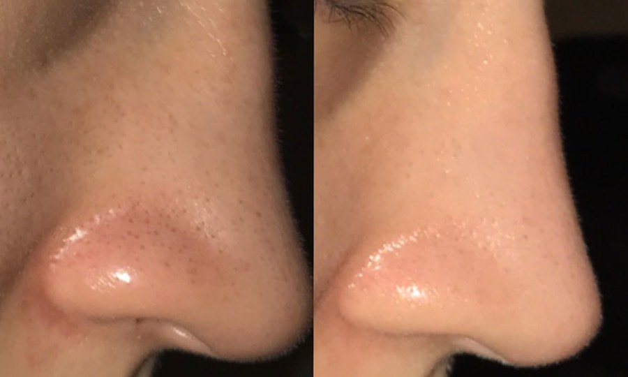 These photos of a woman getting rid of blackheads in 1 month make ...