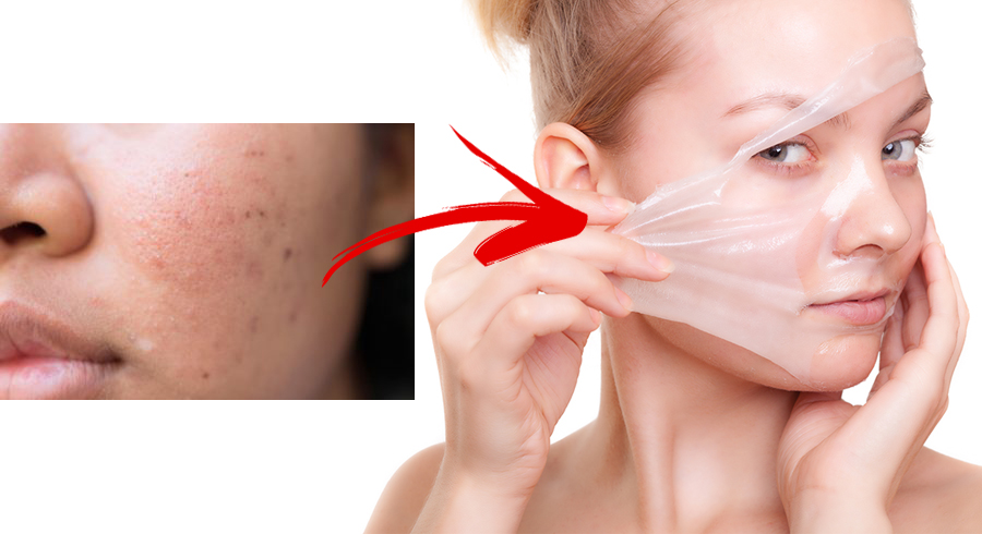 5 Facts About Acne Scar Creams You Need To Know To Get The Best