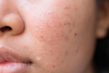Acne Scar Creams Hyperpigmentation
