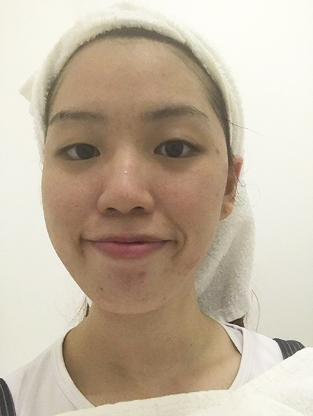 Extraction Facial Singapore Derma Lab 3