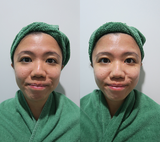 Celmonze The Signature Facial Review Before After