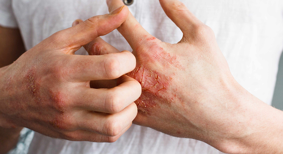 Eczema on your hands can be annoying and even painful. These 5 tips will make a difference to your life (and your skin).