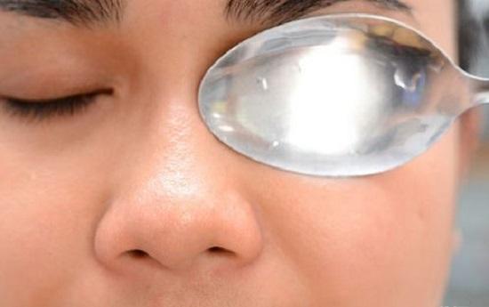 Eye Bags Frozen Spoon