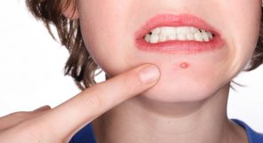 Get Rid Of Chin Pimples Fast Feature