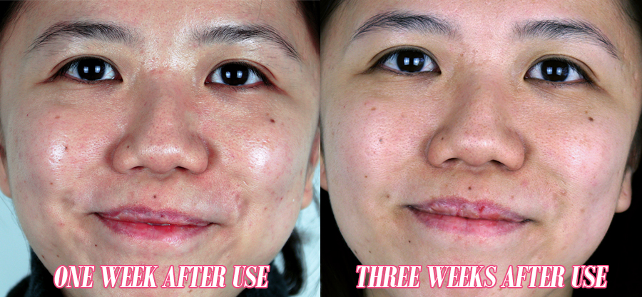 Lancome Advanced Genifique Youth Activating Concentrate Serum Review 14