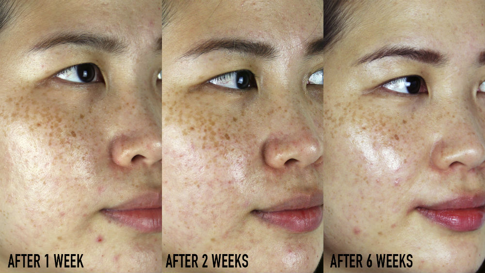 Skinceuticals Discoloration Defense Review Progress