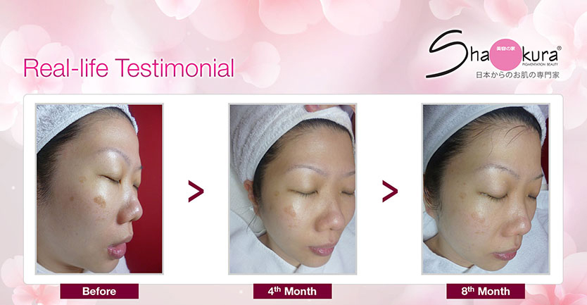 Shakura Pigmentation Facial Therapy Review 7 Copy