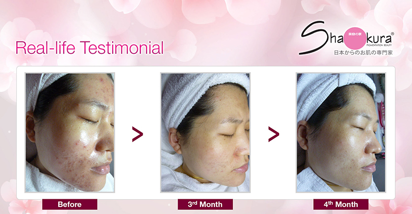 Shakura Pigmentation Facial Therapy Review 9 Copy