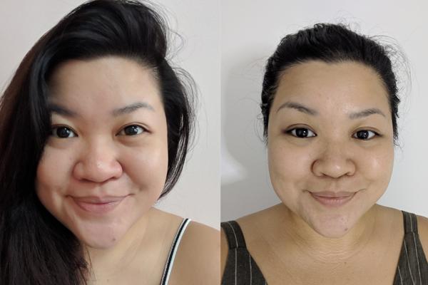 Best Sensitive Skin Facials Before After