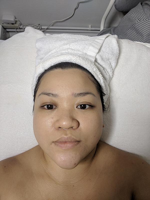 Best Sensitive Skin Facials Foaming Exfoliation After
