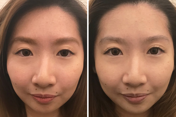 Avone Beauty Secrets After Hydroplus Facial