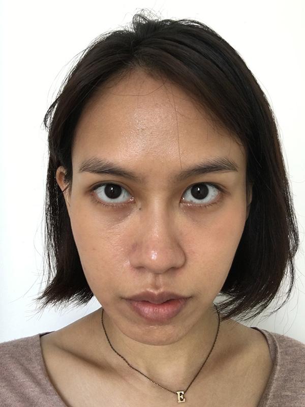 Best Acne Facials Five Days After