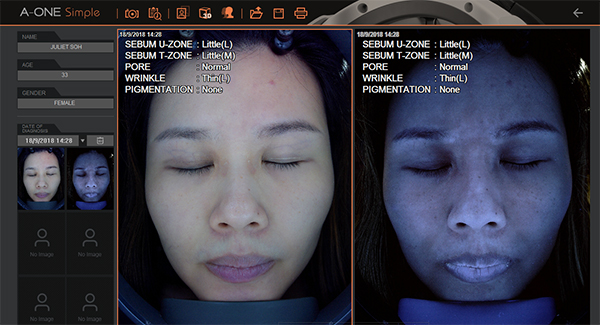 Astalift Facial Review Skin Analysis 1