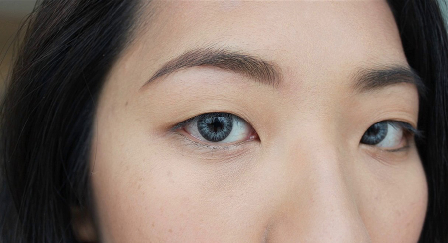 Double eyelid surgery in Singapore: the complete guide to getting big, doe-like eyes