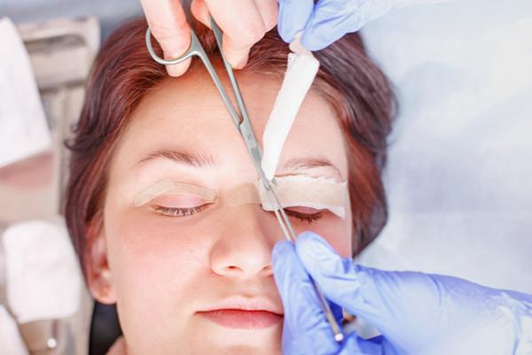 Double Eyelid Surgery In Singapore Pain Level