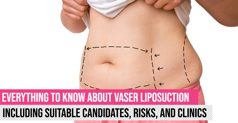 Vaser Liposuction Guide Featured