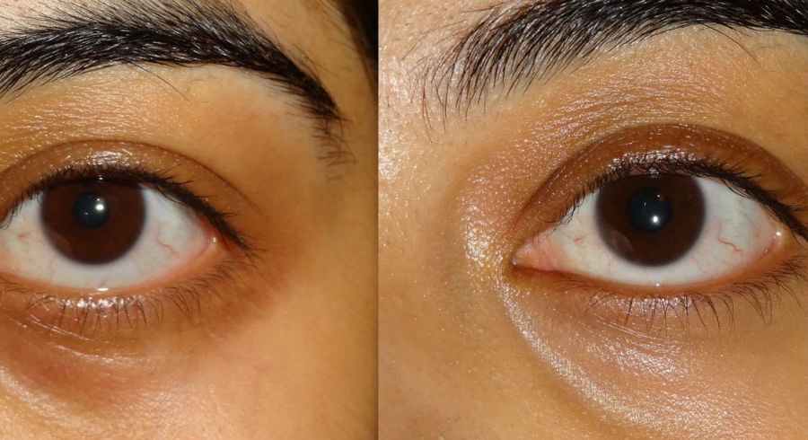 Concealer Application For Different Concerns
