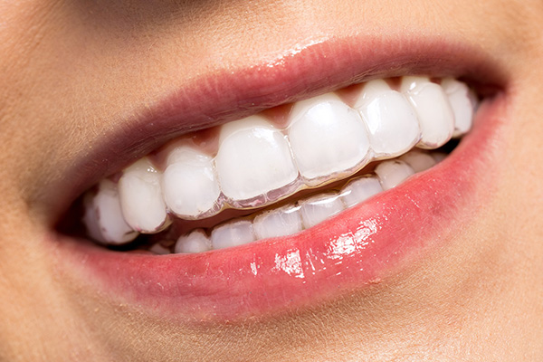 Things I Wish I Knew Before Getting Invisalign Cost