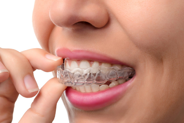 Things I Wish I Knew Before Getting Invisalign Header