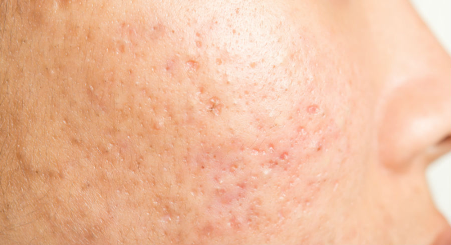 PICO Fractional Laser: Why it's your best chance to get rid of acne scars and pigmentation for good
