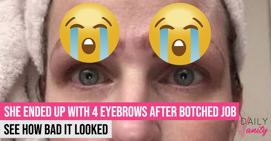 4 Eyebrows Botched Job