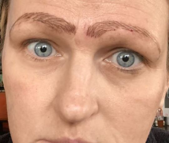 Botched Microblading Four Eyebrows 1