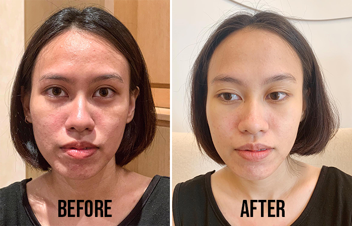 Best extraction facials in Singapore (2019 edition