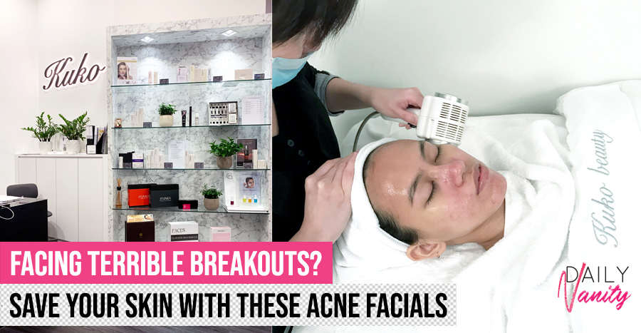 Acne Facial Listicle Featured Image