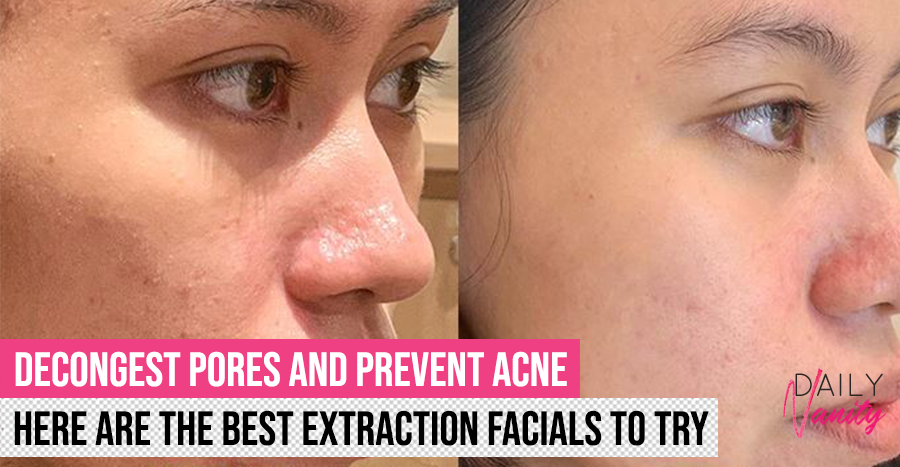 Best extraction facials in Singapore (2019 edition): Treatments that de-congest your pores and prevent acne