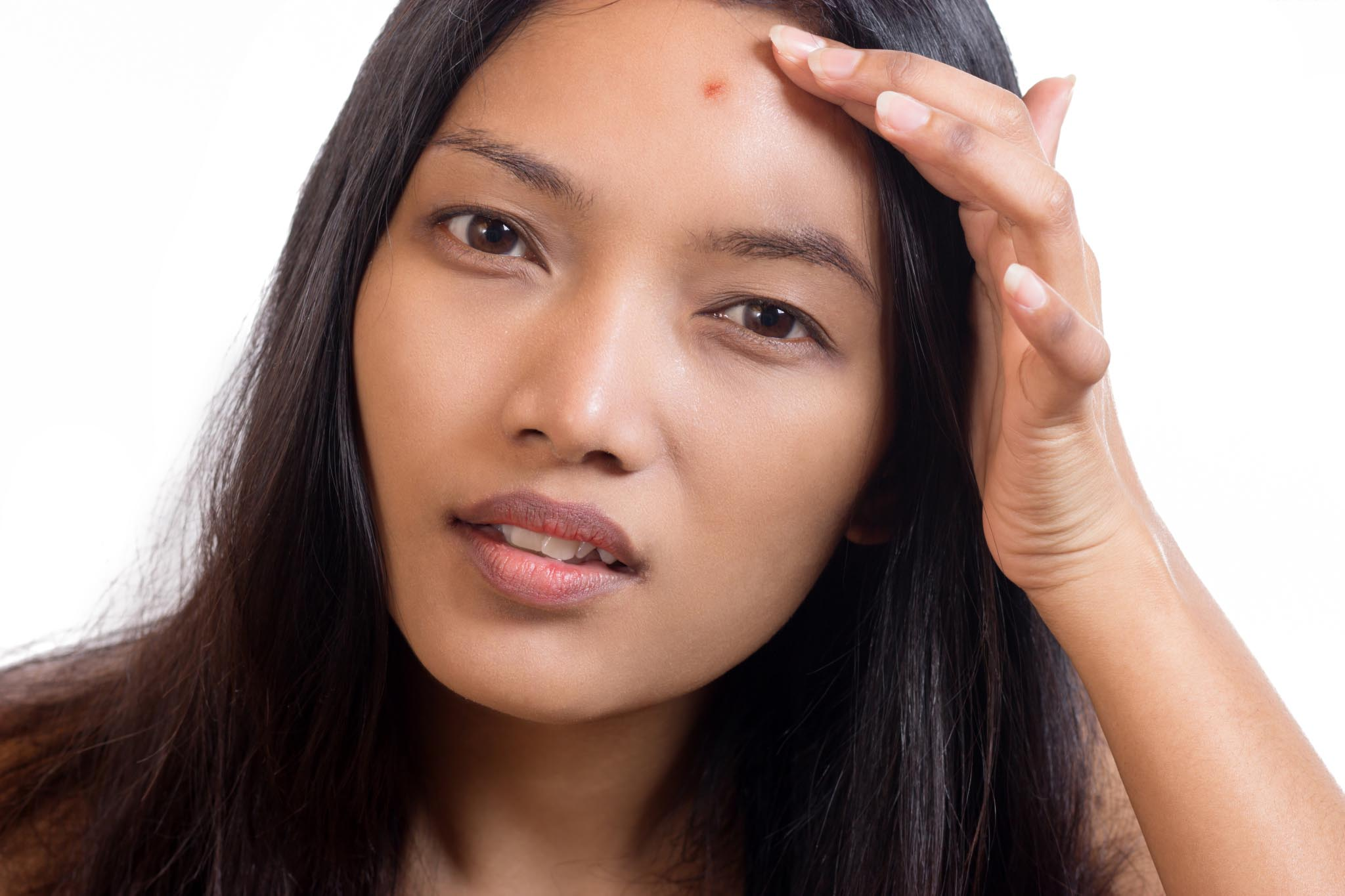 Skincare Myths Acne