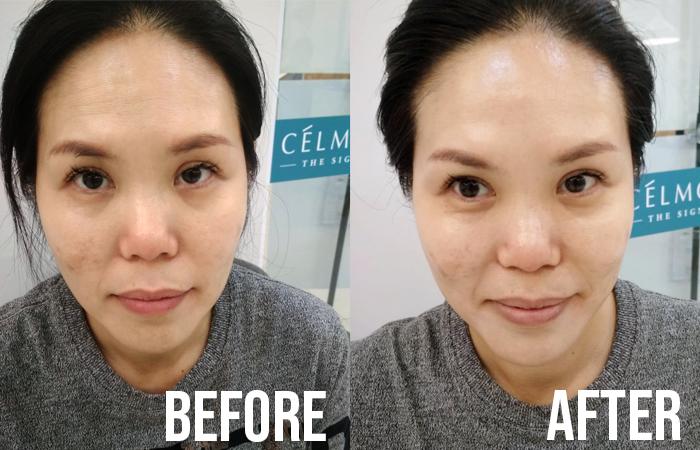 Celmonze Signature Plus Facial Review Kym