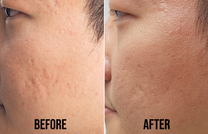 Acne Scar Removal Clifford Aesthetics Before After 1
