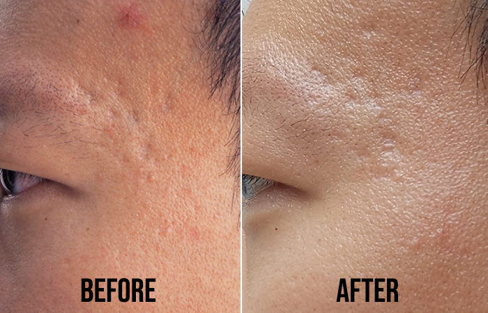 Acne Scar Removal Clifford Aesthetics Before After 2